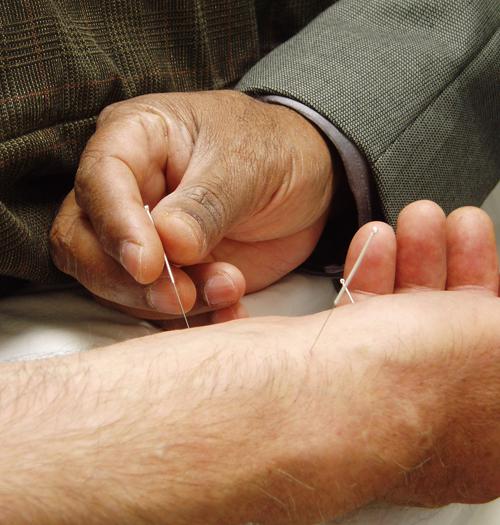 Acupunctura. Foto: Kyle Hunter (licencia CC)