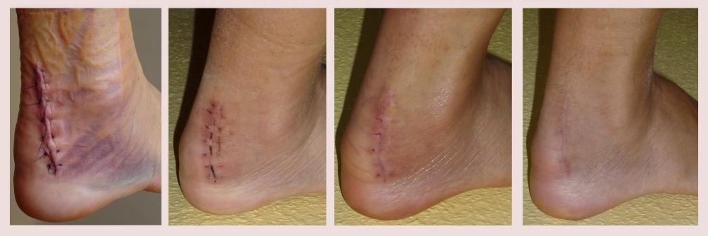 Evolución de una cicatriz quirúrgica. Foto: Kaspar1892 (licencia CC)