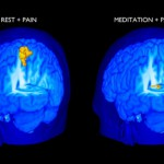 El cerebro dolorido con y sin meditacion
