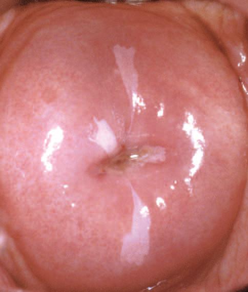 Lesión de bajo grado por virus de papiloma. Fuente: www.androsmedic.com