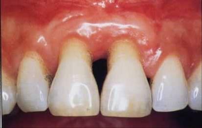Recesion_parodontal-Damdent