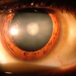 Catarata-ojo-humano-Rakesh Ahuja